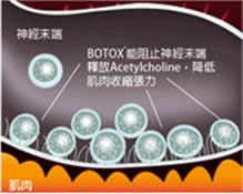 http://www.skin.qhms.com/images/treatment_botox_intro.gif
